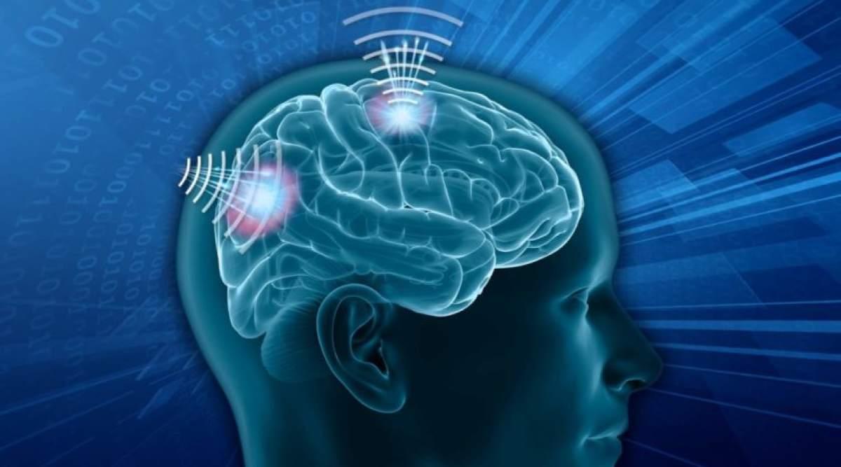 Wireless brain senors